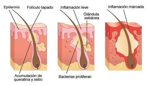 Qué es el acné?