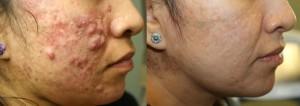 Laser para acne
