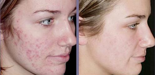 Tratamiento laser para acne