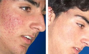 Acne Laser Antes y Despues