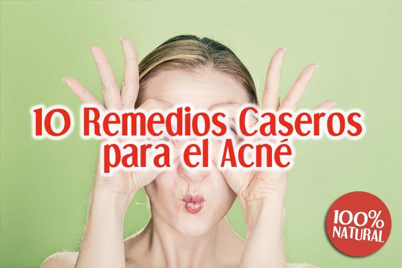10 Remedios Caseros Para El Acné 100% Naturales