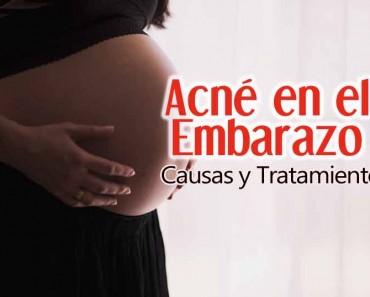 Acné en el embarazo