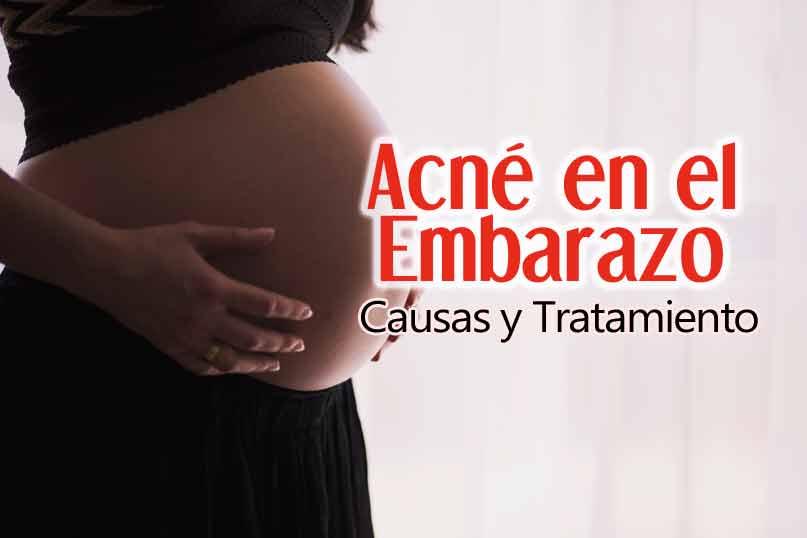 Acné En El Embarazo: Causas y Tratamiento