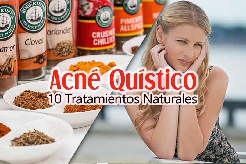 Acné Quístico: 10 Tratamientos Naturales Que Funcionan