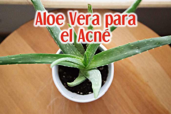 Aloe Vera para el acné