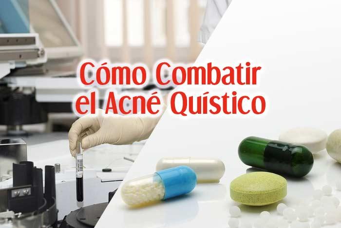 Cómo Combatir El Acné Quístico: Tratamiento