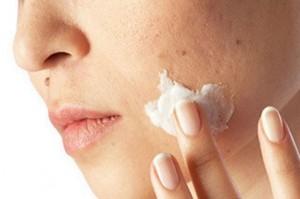 Acido Retinoico para el acne