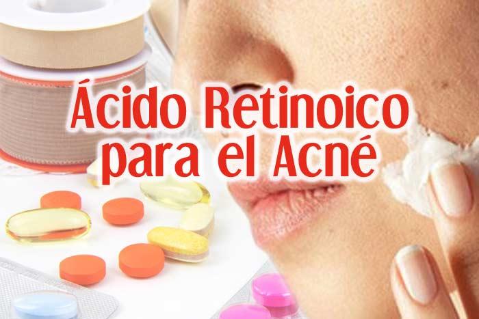 acido retionico para el acne
