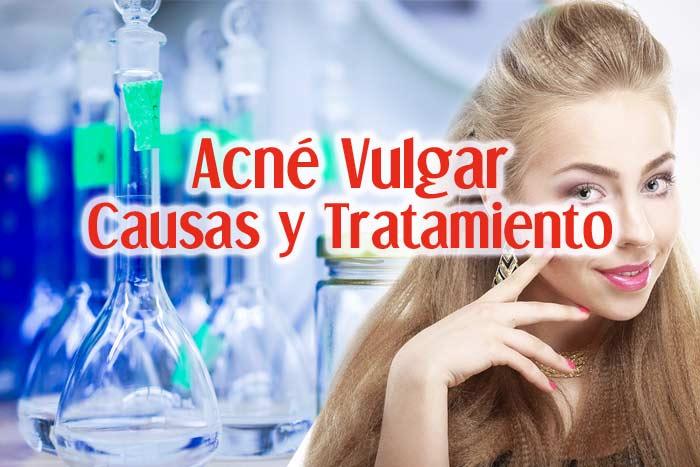 Acne Vulgar: Causas, Síntomas y Tratamiento