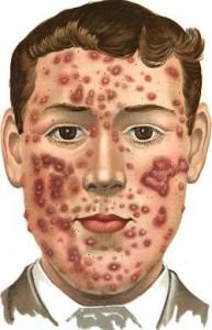 Acne conglobata sintomas
