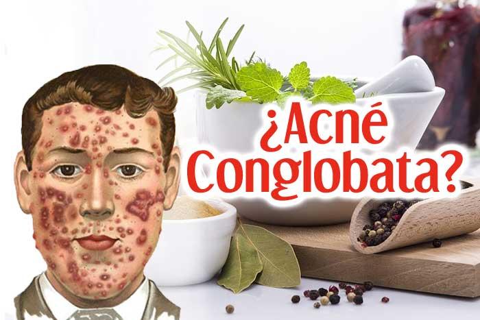 Acné Conglobata: Causas y Tratamiento