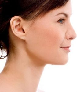 Aclarar cicatrices de acne