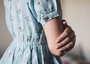 Acne en los brazos