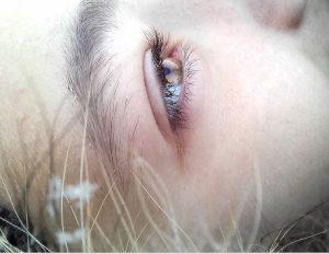 Granitos en los ojos