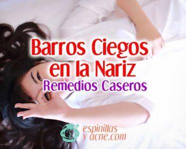 Cómo eliminar Barros Ciegos