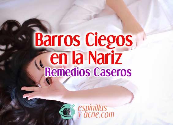Barros Ciegos en la Nariz: Elimínalos de Forma Casera