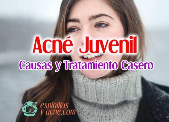 Acné Juvenil: Causas y Tratamiento