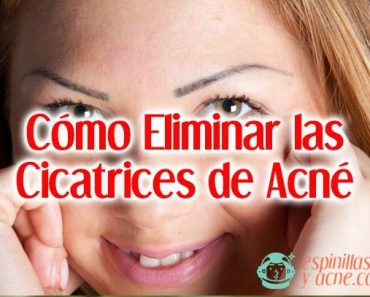Eliminar cicatrices de acné