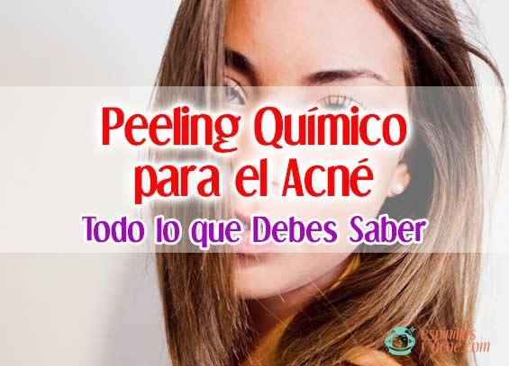Qué es el Peeling